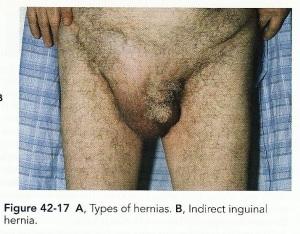 Inguinal Hernia (Direct)